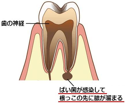 神経の無い歯は虫歯になりやすくなる